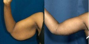 Chirurgie reparatrice : photo avant après lifting bras