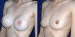 Chirurgie seins avant apres