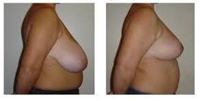 Chirurgie mammaire Tunisie avant après