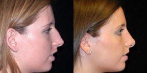 Chirurgie nez avant apres