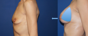 Augmentation mammaire en Tunisie avant apres