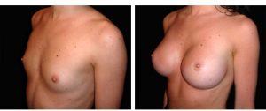Augmentation seins avant apres