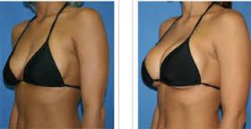 photo avant après augmentation mammaire