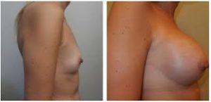 Augmentation mammaire Tunisie : photo avant après
