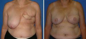 Reconstruction mammaire Tunisie avant apres