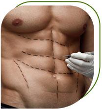chirurgie esthetique pour homme
